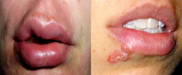 опухли губы аллергия на что
