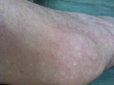 белые интимных кожные местах на пятнышки заболевания
