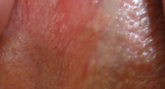 фото сыпь на половых губах