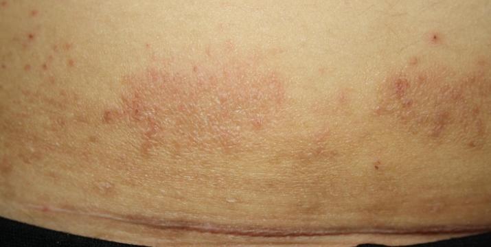 Mantar kasık veya inguinal dermatomikozda 71