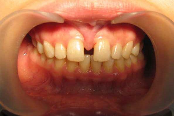 Подрезание уздечки для выравнивания зубов
