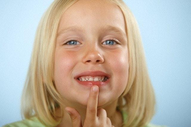 Красная кайма вокруг губ у ребенка