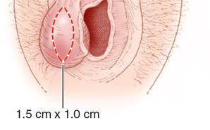 Какие женские половые губы считаются красивыми