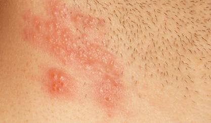 Болячка на половых губах после молочницы. Генитальные язвы
